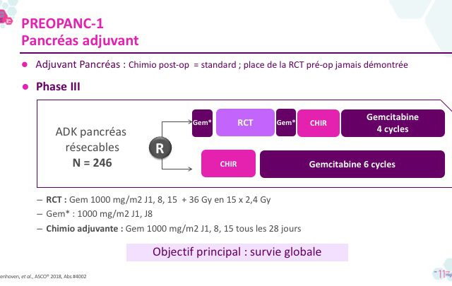 preopanc1