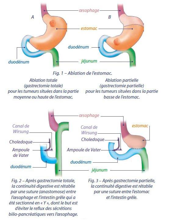 Cancer de l'estomac : Chirurgie - LeCancer.fr