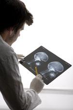 dottore con radiografia in mano