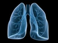 poumon-scanner
