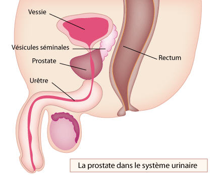 schema-prostate