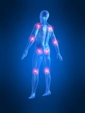rückansicht eines skeletts mit schmerzpunkten